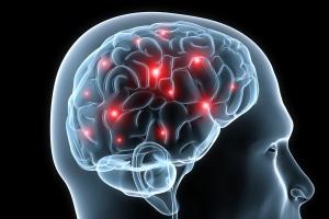 brain-injury-image-600x400